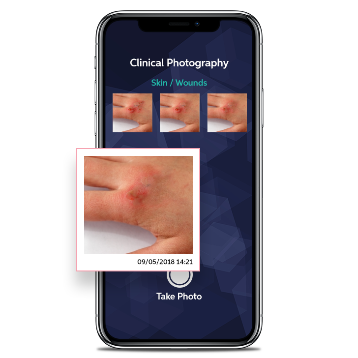Clinical Photography Phone Screen